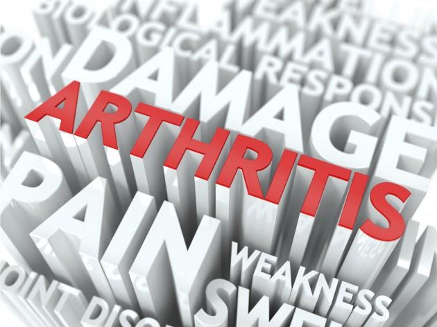 Rheumatoid Arthritis Research Study