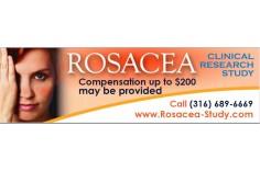 Rosacea Study
