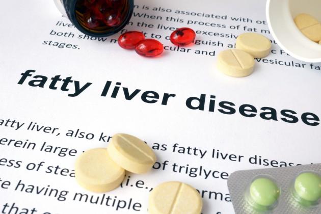 Non-Alcoholic Fatty Liver – West